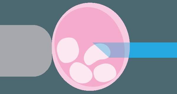 ¿Cuáles son los posibles diagnósticos cuando se realiza un diagnóstico genético preimplantacional (DGP)?